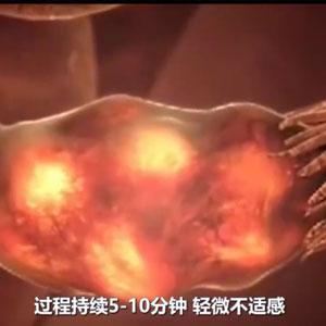 试管婴儿到底有多疼?动画模拟了全过程,看完感叹母爱伟大